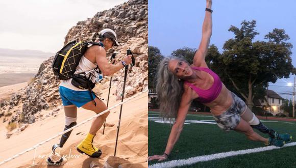 Amy Palmeiro-Winters recibió casi 30 operaciones en 3 años con las cuales pudo volver a correr usando prótesis. (Foto: Captura/Instagram)