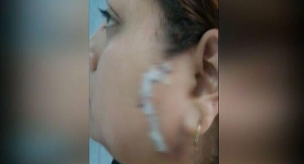 Queda con el rostro desfigurado tras ser atacada por otra mujer con una botella rota. Foto: Captura de América Noticias