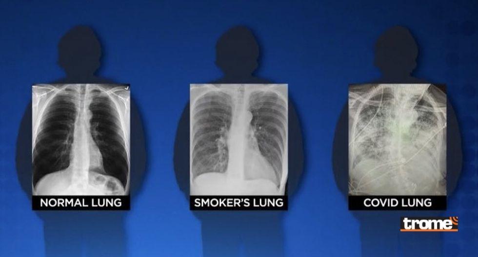 Los pulmones de un paciente con COVID-19 quedan peor que los de un fumador y esta imagen lo comprueba
