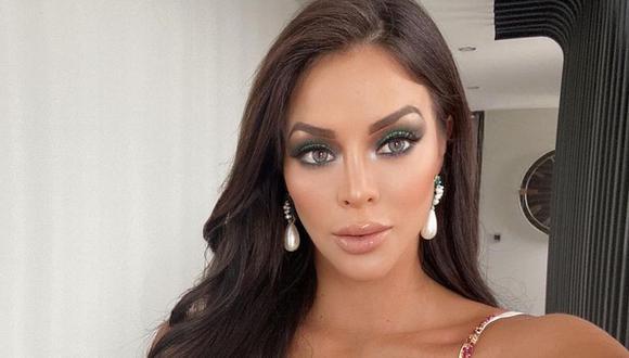 Entre los cambios físicos de Sheyla Rojas, también está el uso de lentes de contactos de colores. ¿Cuál es el verdadero color de sus ojos? (Foto: Sheyla Rojas/Instagram)