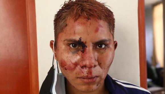 Delincuente quedó desfigurado. | Foto: Gonzalo Córdova