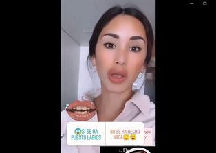 Fiorella Chirichigno niega 'arreglito' en labios, pero Samuel Suárez le muestra los recibos