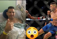 Chris Weidman sufrió una impactante lesión en su pelea del UFC | VIDEO