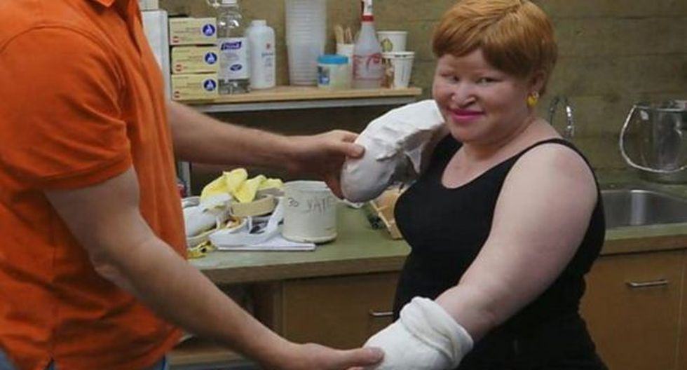 La mutilaron por ser albina en Tanzania.