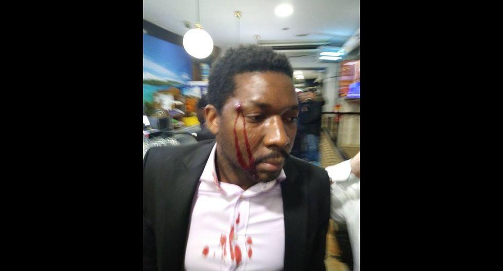 Ataque racista en España