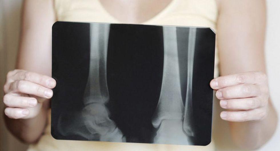La osteoporosis afecta a 36 de cada 100 mujeres en el Perú.