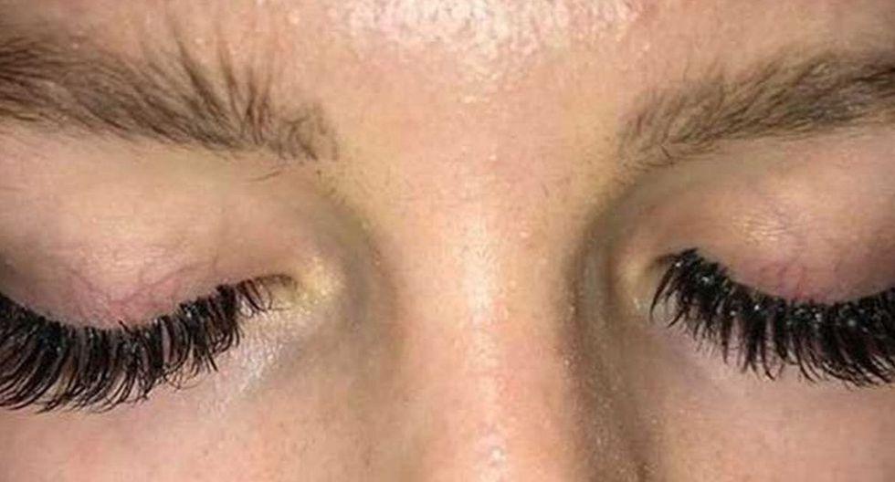 Shannon Horne, una joven de 20 años, advirtió sobre los peligros de ponerse pestañas postizas. (Fotos: Facebook)