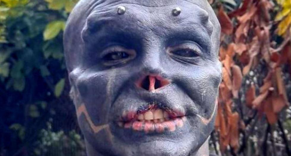 El 'extraterrestre negro' sigue con su metamorfosis: se quita parte del labio superior
