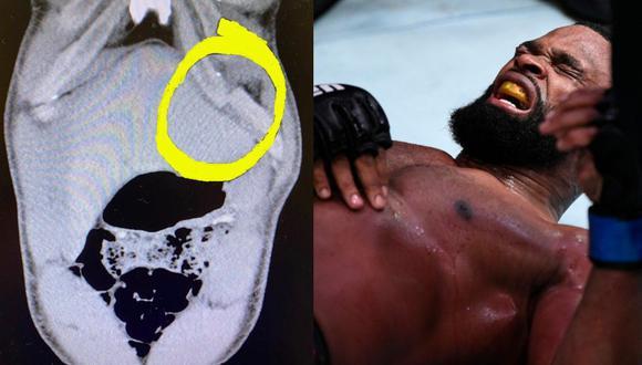 Así terminó la costilla del excampeón del UFC, Tyron Woodley. (Imágenes Twitter Bitcoin sportsbook)
