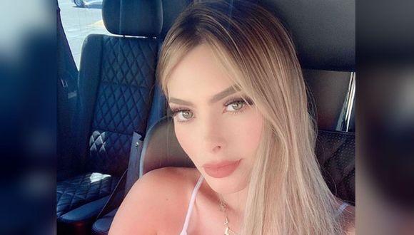 La modelo Cheila Navarro recibió dos impactos de bala en su espalda. (Foto: Instagram - Ladollche_)