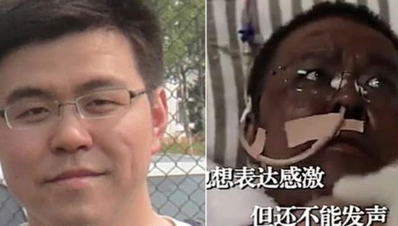 Antes y después del doctor Hu Weifeng