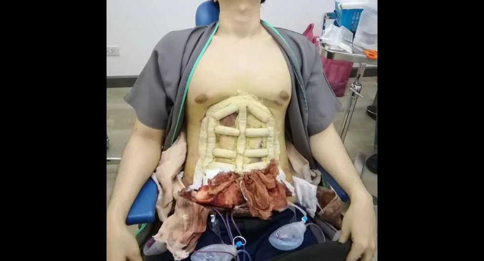 El doloroso proceso tras 'cirugías express' para tallar 'six pack' sin silicona. Foto: 9Gag