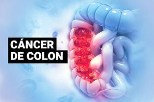 """¿Qué es el cáncer de colon, la enfermedad que le causó la muerte a """"Pantera Negra""""?"""