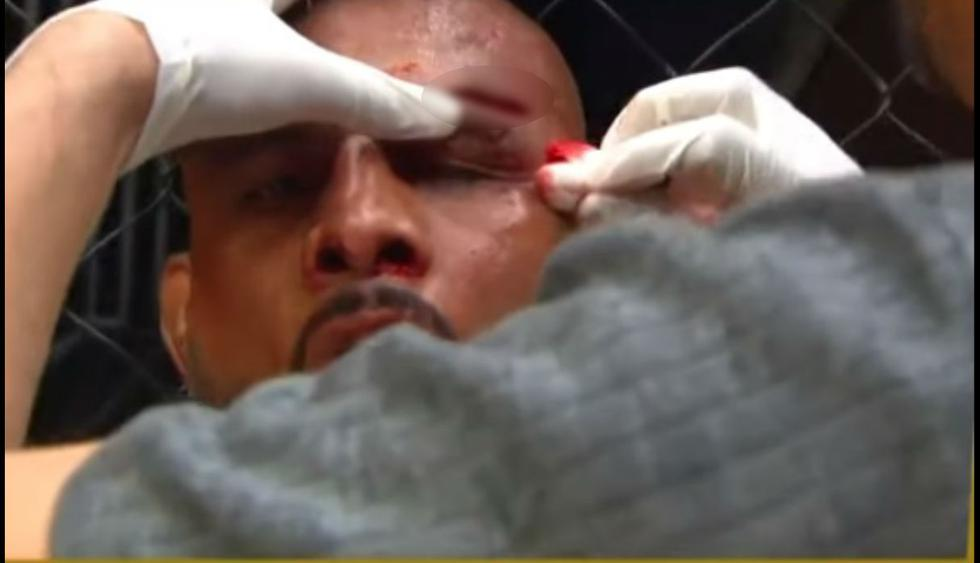 Uno de los cortes más horrendos de las MMA. (Captura YouTube)