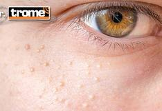 ¿Qué podemos hacer si tenemos Milia o los granitos blancos debajo del ojo? Dr. Trome te aconseja [VIDEO]