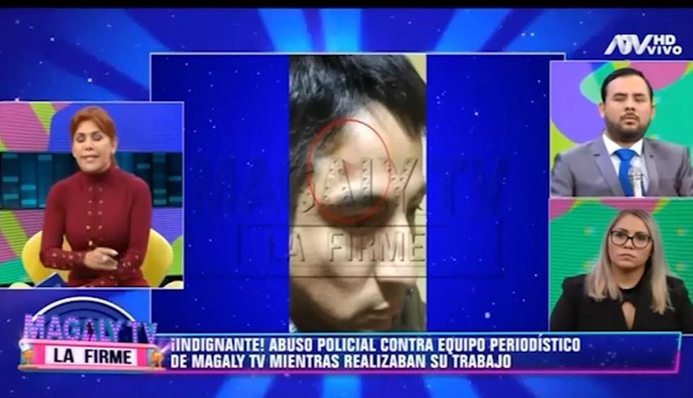 Magaly Medina, indignada por agresión a sus 'Urracos'. (Capturas: Magaly Tv. La firme)
