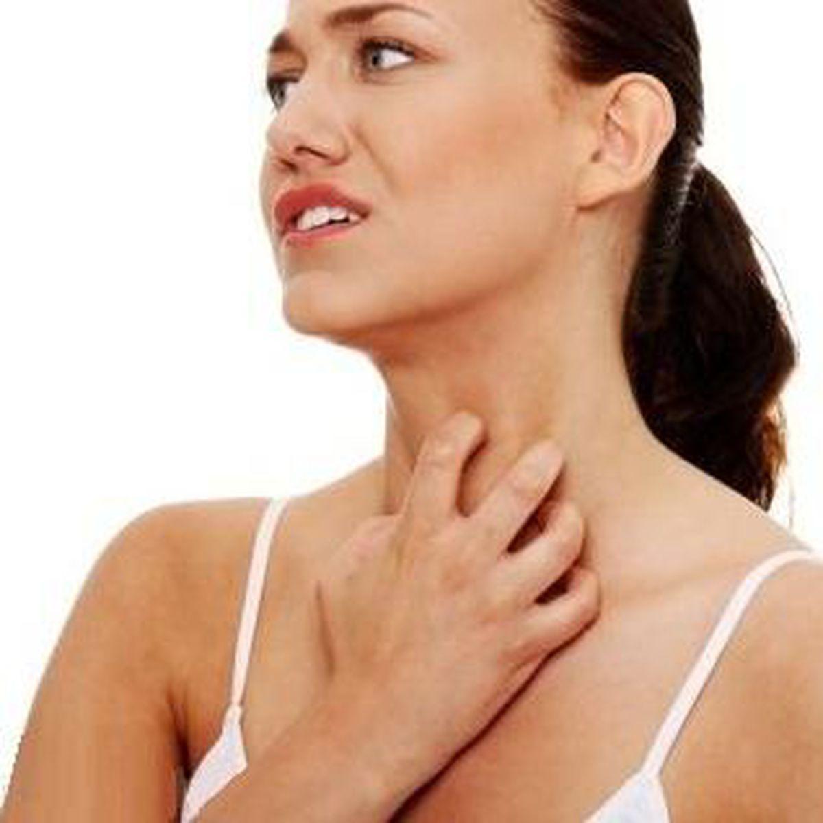 medicamento para sarpullido en la cara