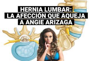 ¿Qué es una hernia lumbar?: la afección que preocupa a Angie Arizaga