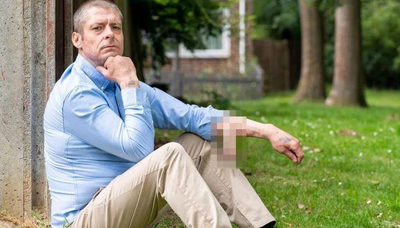 Malcolm MacDonald perdio su pene pero se sometió a novedoso tratamiento para que le crezca uno nuevo | Foto: thescottishsun.co.uk