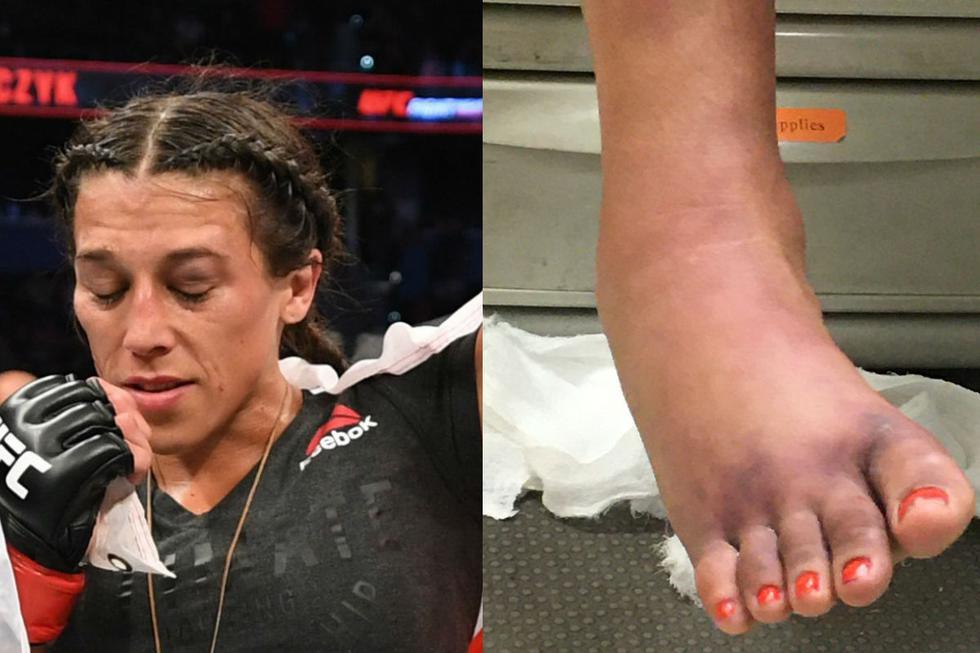 Así terminó el pie derecho de Michelle Waterson. (UFC/ Twittter Ariel Helwani)
