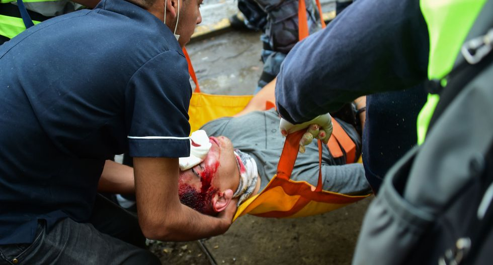 """La Sociedad Chilena de Oftalmología (Sochiof) manifestó este jueves su """"preocupación"""" por el alto número de pacientes con """"daño visual irreversible"""". (Foto: AFP)"""