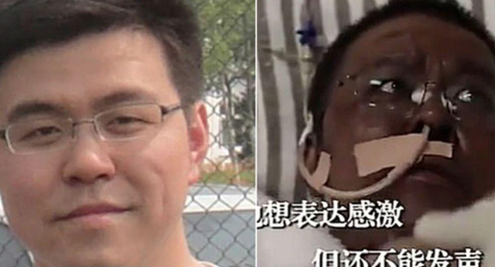 Muere médico al que se le oscureció la piel tras contraer el coronavirus en Wuhan