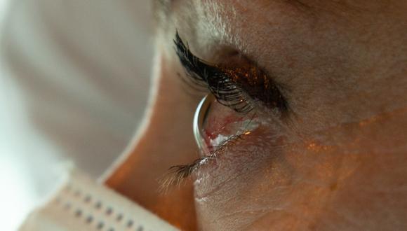 """""""El ojo seco es una patología muy frecuente en estos tiempos de pandemia por el uso constante de mascarillas"""", dijo el oftanmólogo, Juan Carlos Corbera. (Foto: Difusión)"""